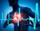 leki skrzep udar mózgu zawał serca