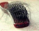 3 najlepsze sposoby na wypadanie włosów